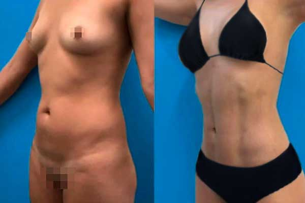 Liposucción en Alicante con Vaser Lipo bragaz-negras-mujer-lipovaser-7_1