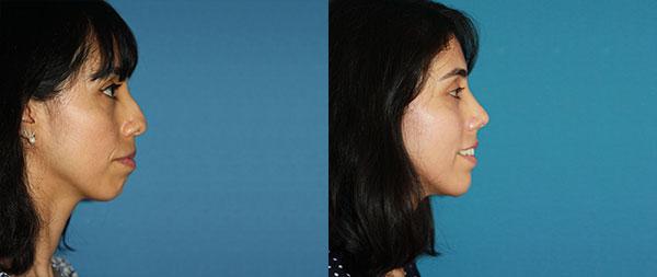 Operación de nariz: Rinoplastia ultrasónica perfiloplastia-1