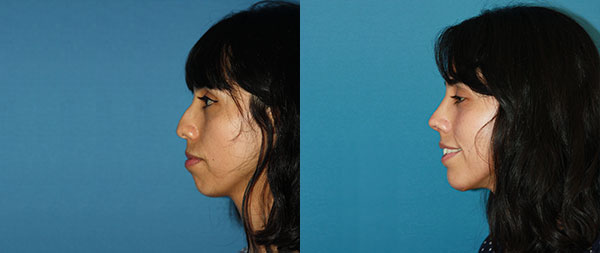 Operación de nariz: Rinoplastia ultrasónica perfiloplastia-2