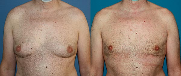 Male gynecomastia ginecomastia1