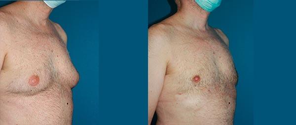 Male gynecomastia ginecomastia2