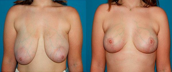 Breast reduction reduccion1