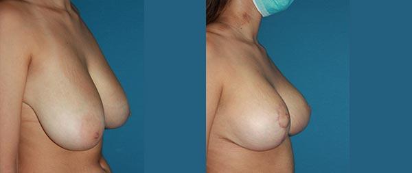 Breast reduction reduccion2