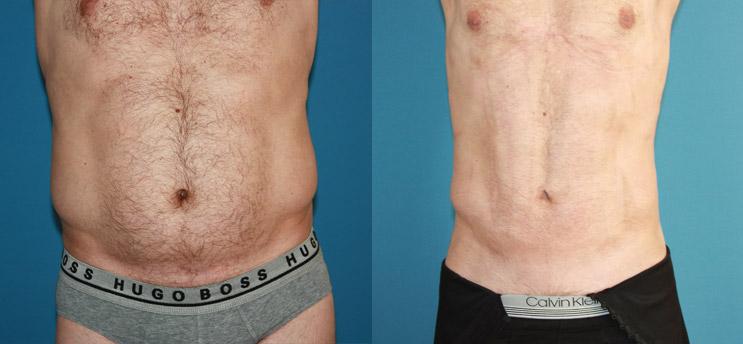 Liposucción en Alicante con Vaser Lipo caso-vaser-hombre-abdomen-1