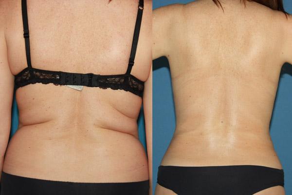 Liposucción en Alicante con Vaser Lipo caso-vaser-mujer-espalda-1