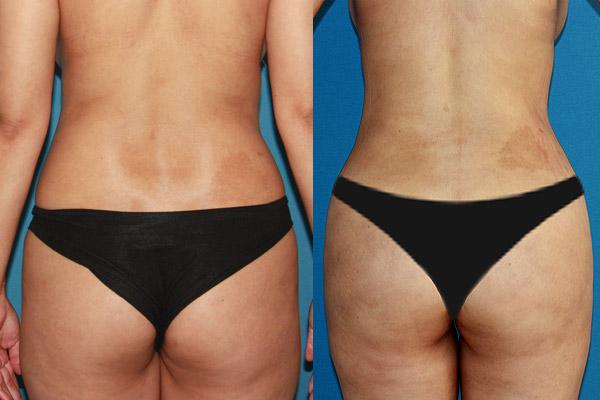 Liposucción en Alicante con Vaser Lipo mujer-vaser-espalda-2
