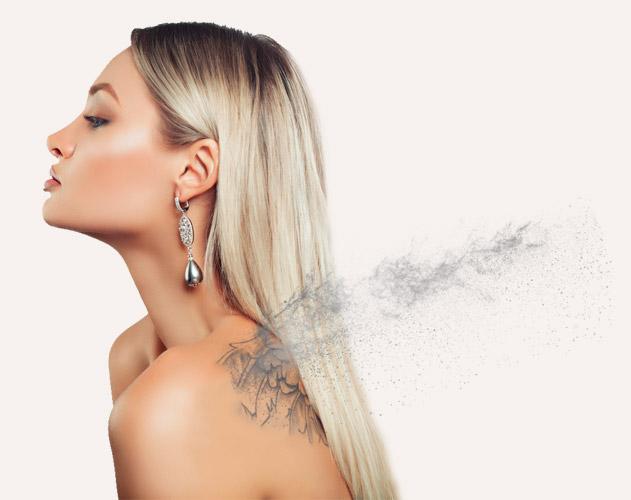 Medicina estética facial foto-tatuaje-espalda