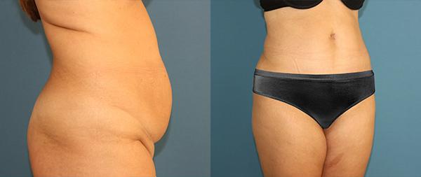 Abdominoplasty antes_despues-6-abdominoplastia-2