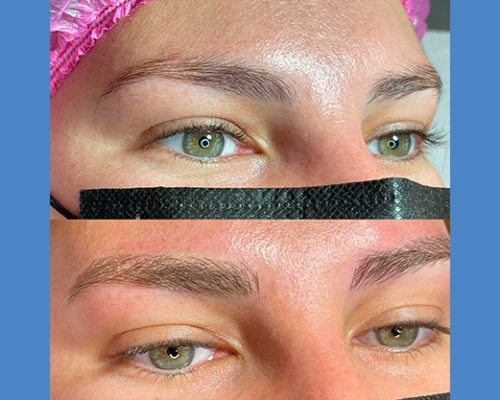 Brows Microblading and Eyelashes Extension in Alicante antes-despues-microblanding-5-2-pa765f0wexfagriqp8nai29zcalev8uqgql6dmm080