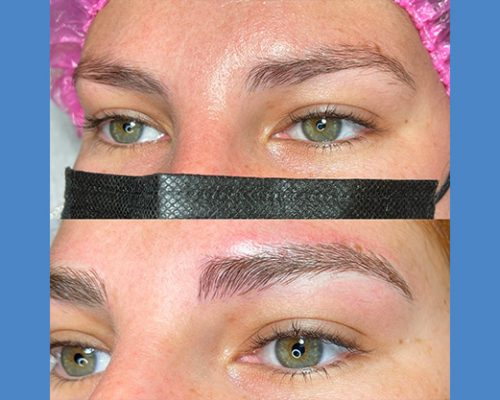 Brows Microblading and Eyelashes Extension in Alicante antes-despues-microblanding-5-3-pa765gwkslhv3zg0e9gjn1swj2c5an274zw5c6j7vk