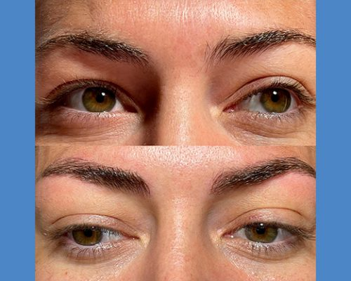 Brows Microblading and Eyelashes Extension in Alicante antes-despues-microblanding-6-1-pa765llrqroaq196mthohim7hzozd4kutn5kqkc90g