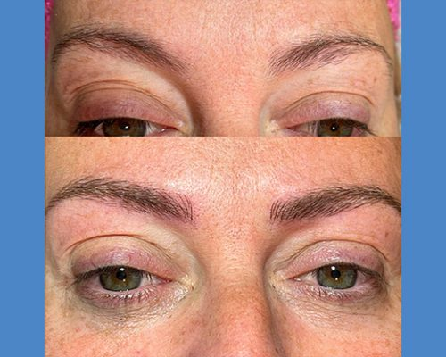 Brows Microblading and Eyelashes Extension in Alicante antes-despues-microblanding-7-1-pa765t4h9fylawy9ewqp1gpw92nx2pepiodgks13mo